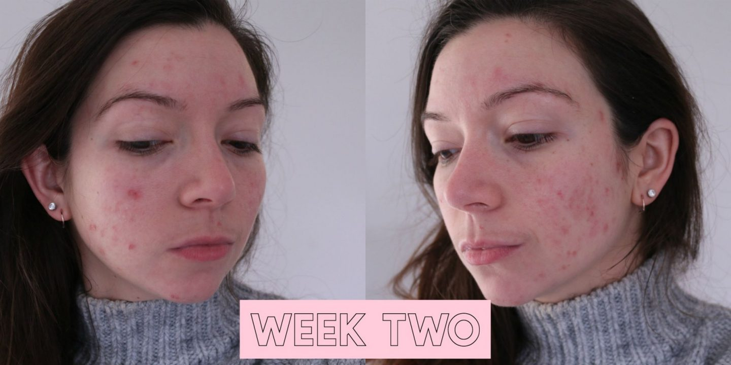 Roaccutane, accutane, roaccutane results, roaccutane diary, dizzybrunette3, acne, spots, how to get rid of acne, roaccutane before and after, roaccutane side effects